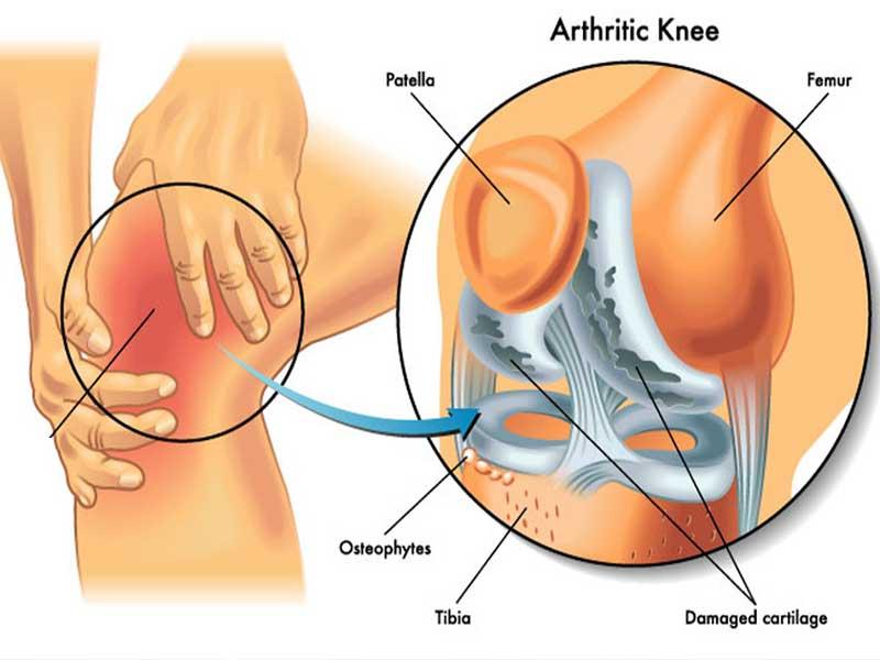 Knee-disease--